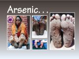 Examples of some affected individuals from Bangladesh exhibiting clear symptoms of arsenicosis, as exemplified by disfiguring keritosis and painful skin lesions.